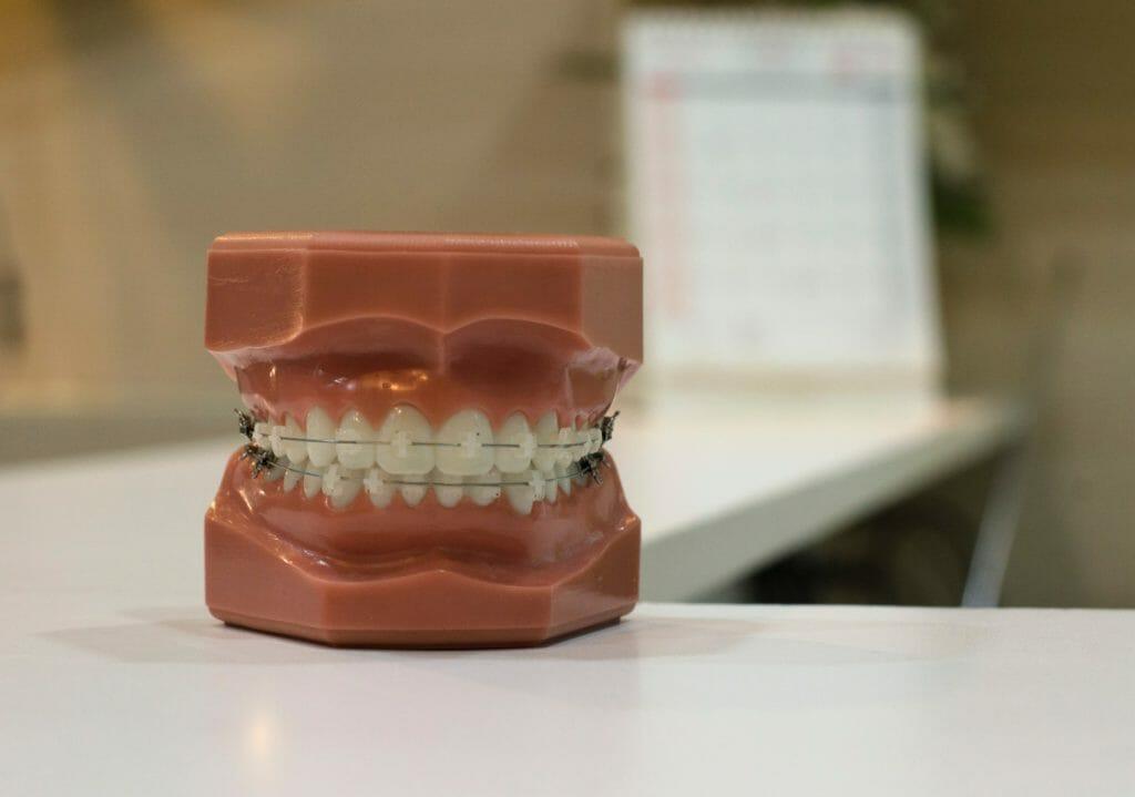 【体験記】30代から始める大人の歯列矯正【プロローグ】